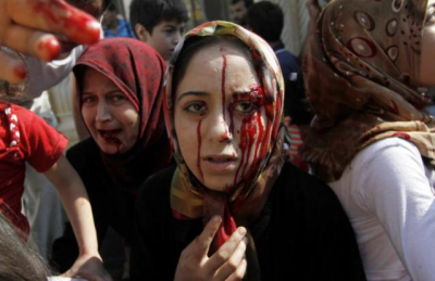 Syria - Woman with bloody face from Chemical Weapons attack